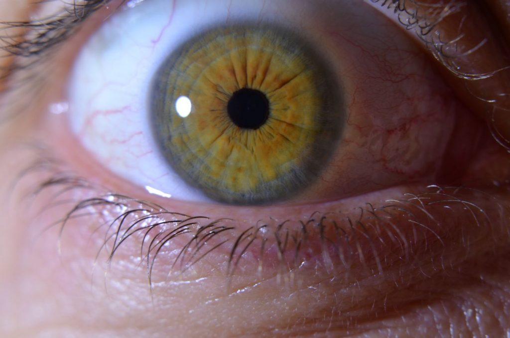 """Detail oka, na ktorom vidno """"lúčovito zvrásnenú"""" dúhovku"""